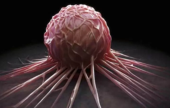 Scientists: New treatment will fight cancer cells from becoming drug-resistant