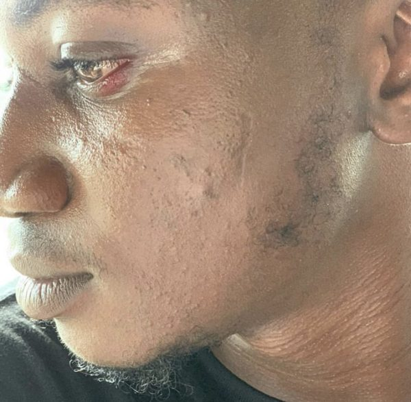 Pam Pam allegedly slapped by Peruzzi