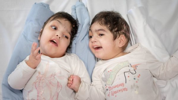 Twins Safa and Marwa Ullah after their seperation (Photo credit: SWNS)