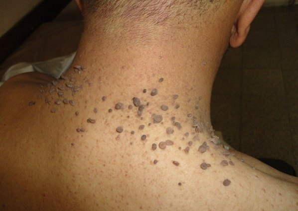 How to prevent skin tags: safe methods of removal