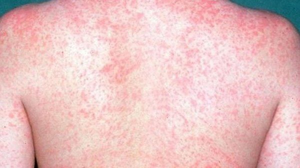 Study: Measles makes your body forget how to fight other diseases