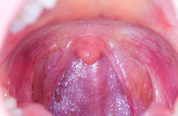 How oral sex could lead to throat cancer in partners…
