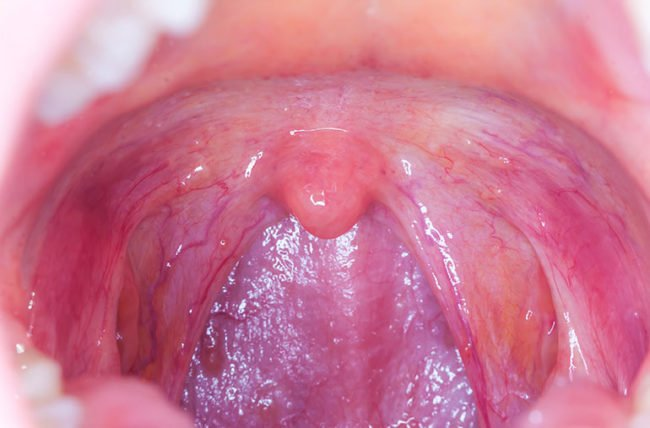 How oral sex could lead to throat cancer in partners through HPV