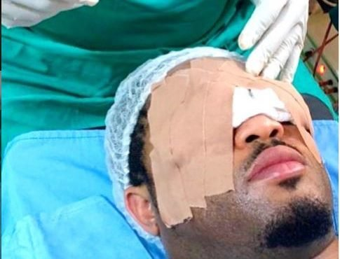'Over 8 hours, I was without sight' — Mike Ezuruonye…