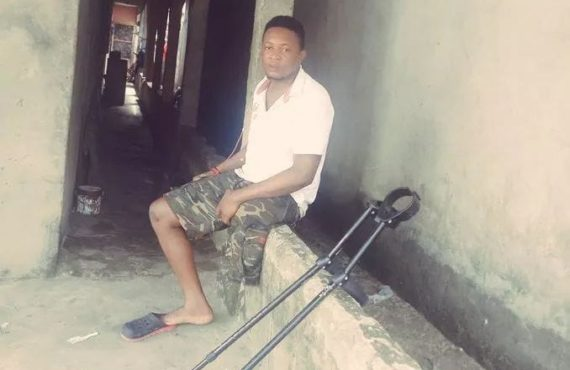Student files N1b lawsuit against army over 'shooting, amputation of…
