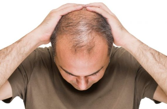 Bald men at greater risk of severe case of COVID-19,…