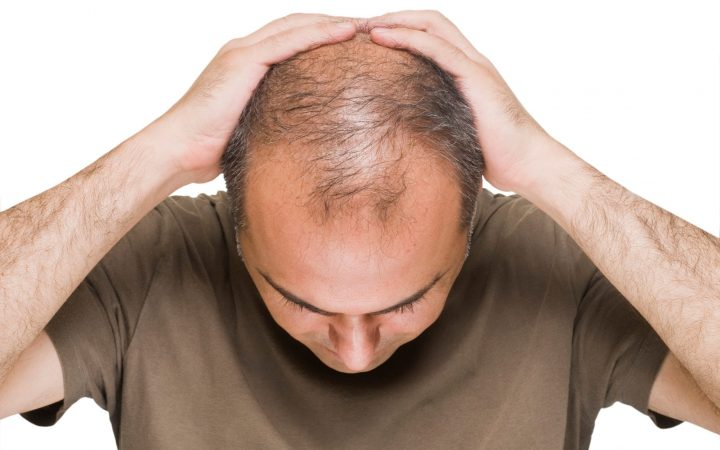 Study: Bald men at higher risk of suffering COVID-19 complications