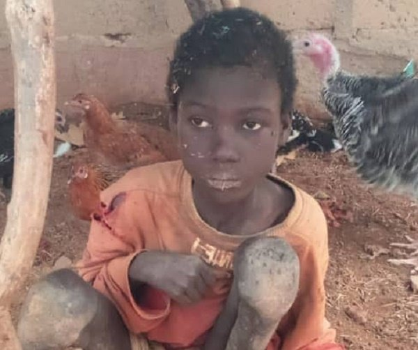 Police arrest father, stepmothers who 'chained boy for two years'