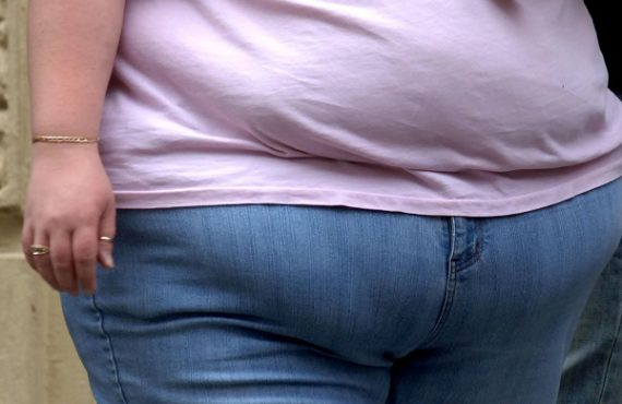 Diabetes drug can aid weight loss, study finds