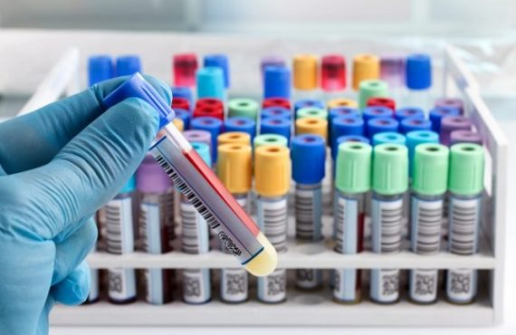 Scientists develop blood test for depression, bipolar disorder