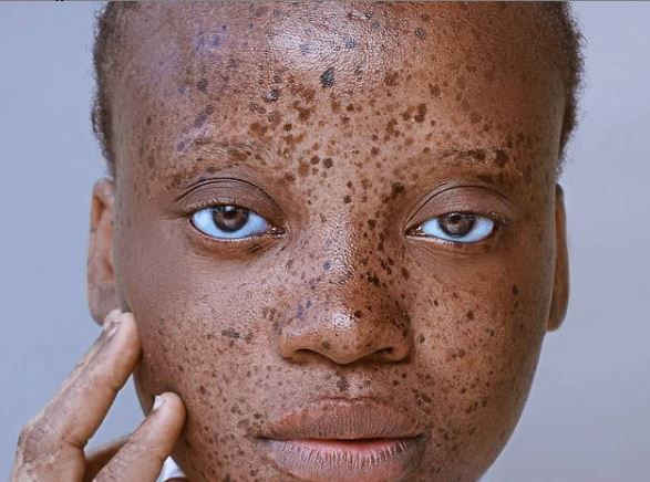 Rejection over my skin pushed me into modelling, says lady with vitiligo