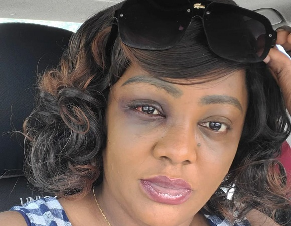 Helen Paul: How I suffered head injury after car accident